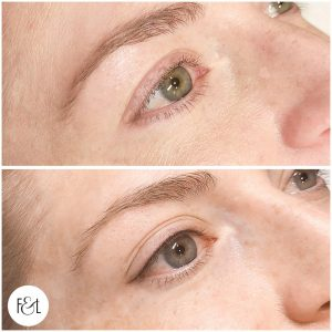 Petite Flick Eyeliner Tattoo - Before and After