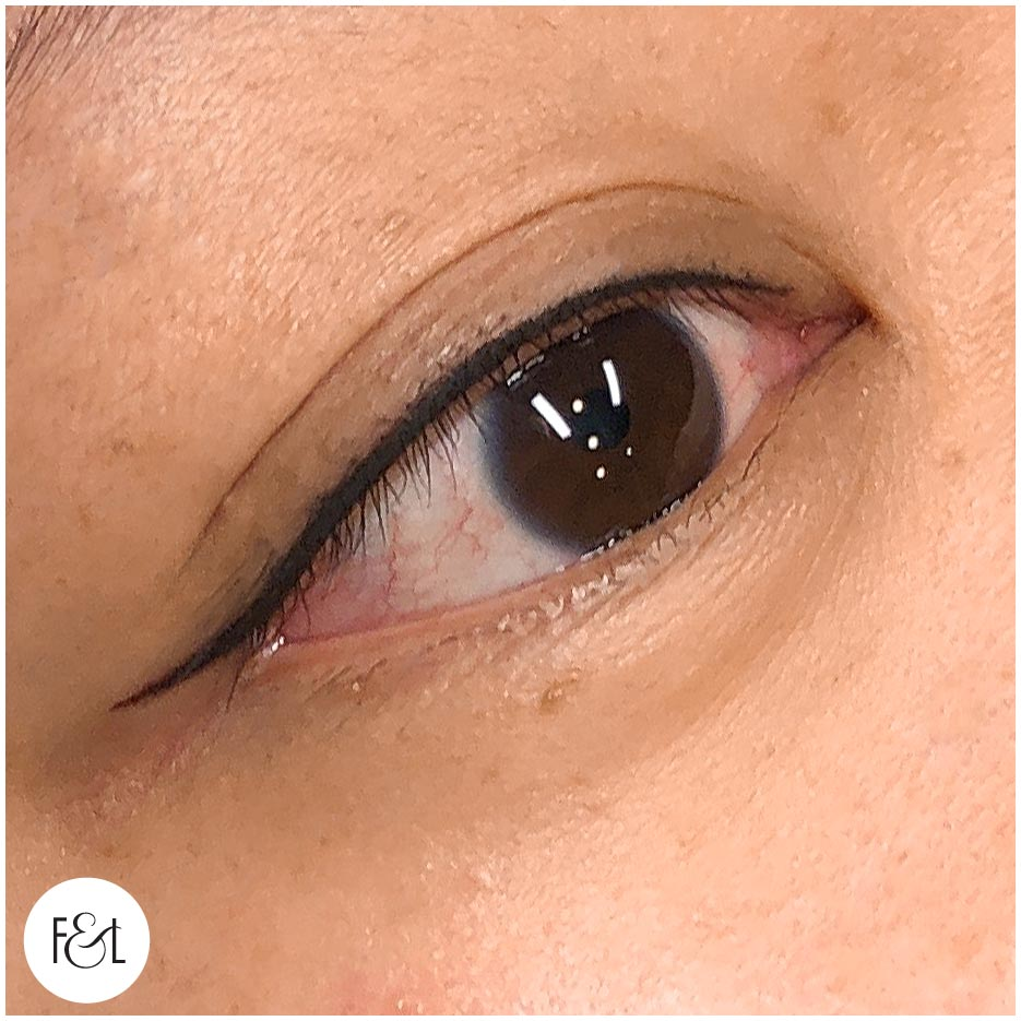Petite Wing Eyeliner Tattoo- Immediately after treatment