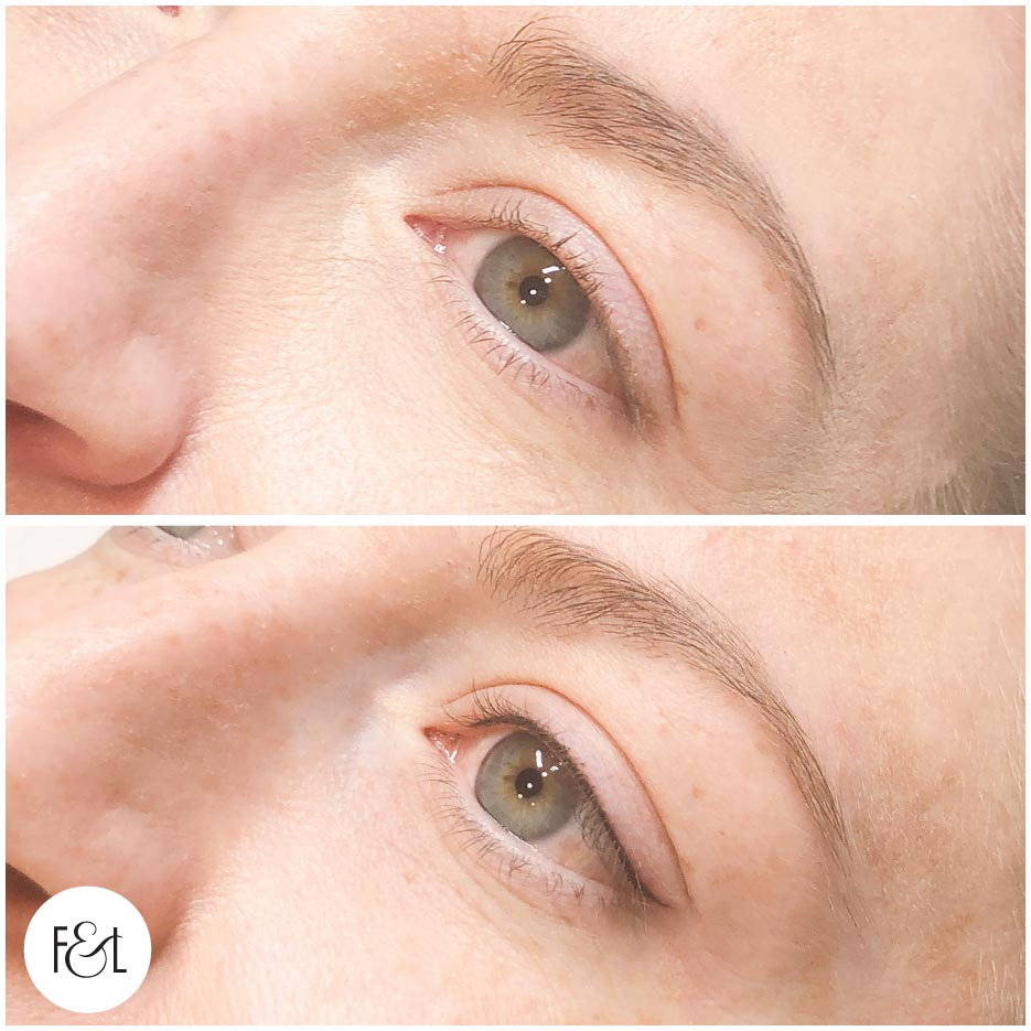 Petite Flick Eyeliner Tattoo - Before and immediately after